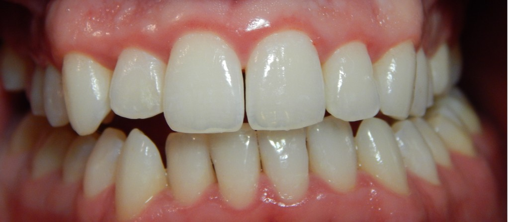 Gingivitis-after