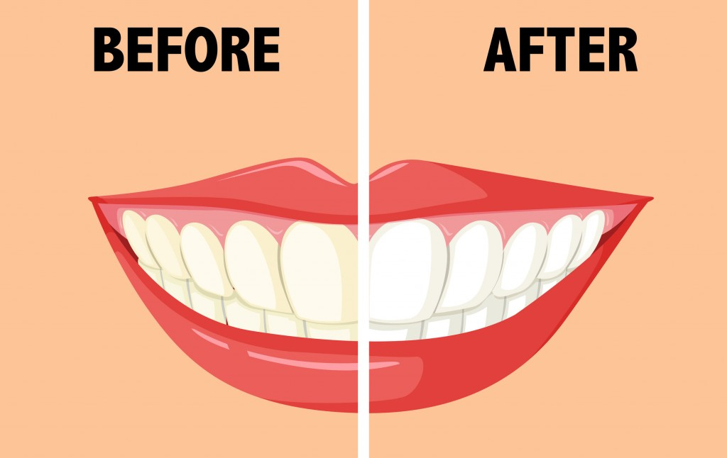 48428751 - before and after brushing teeth illustration