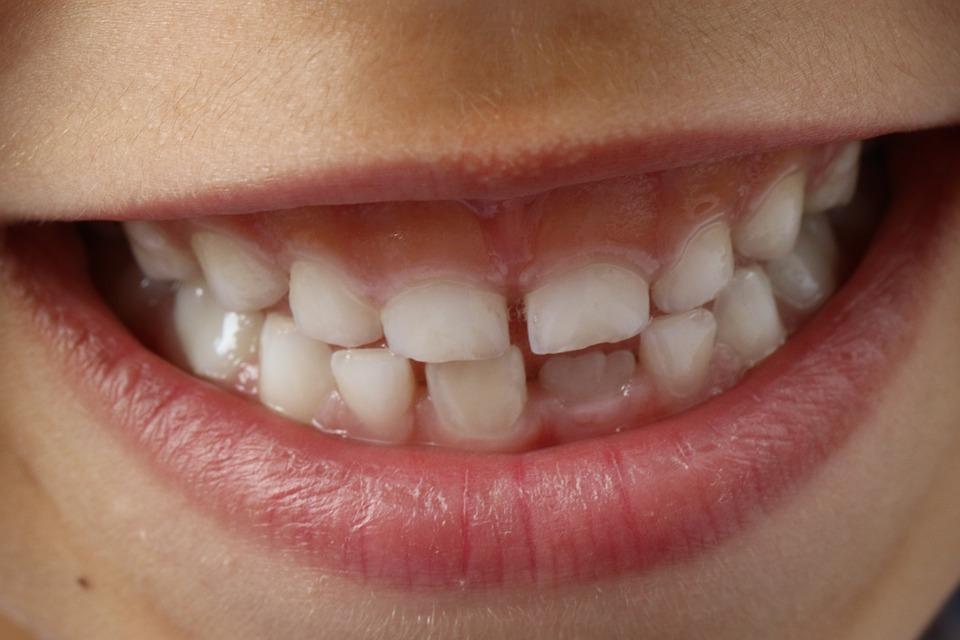 teeth-1743981_960_720