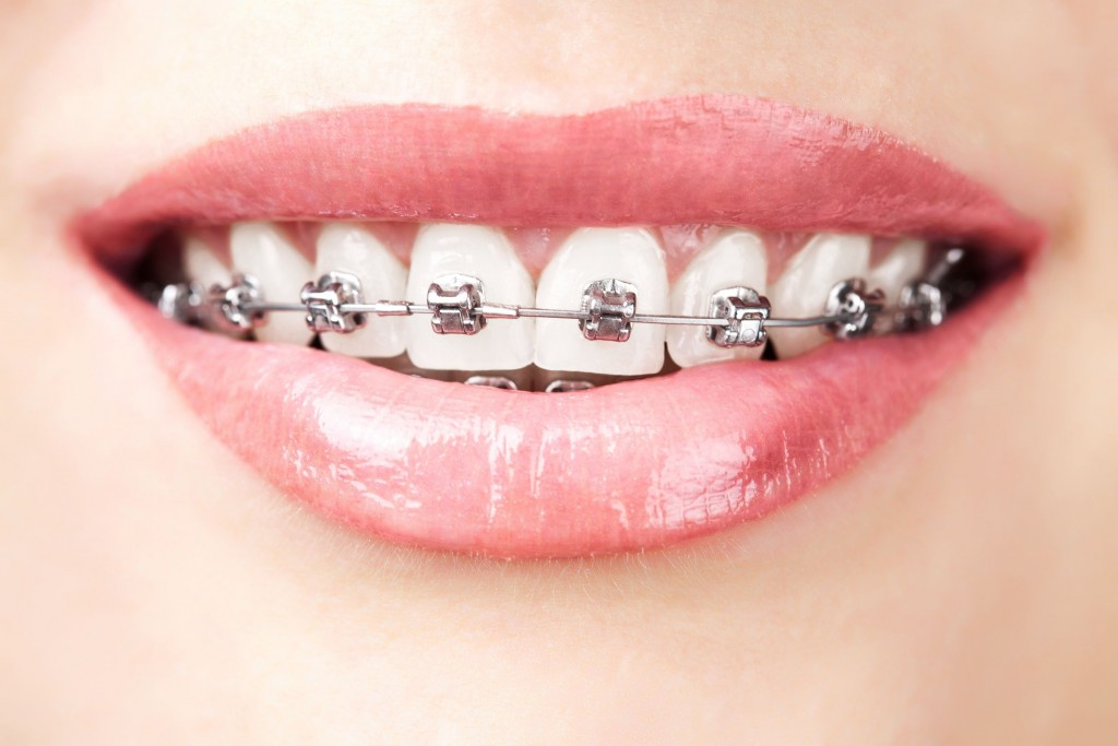 17313536 - teeth with braces