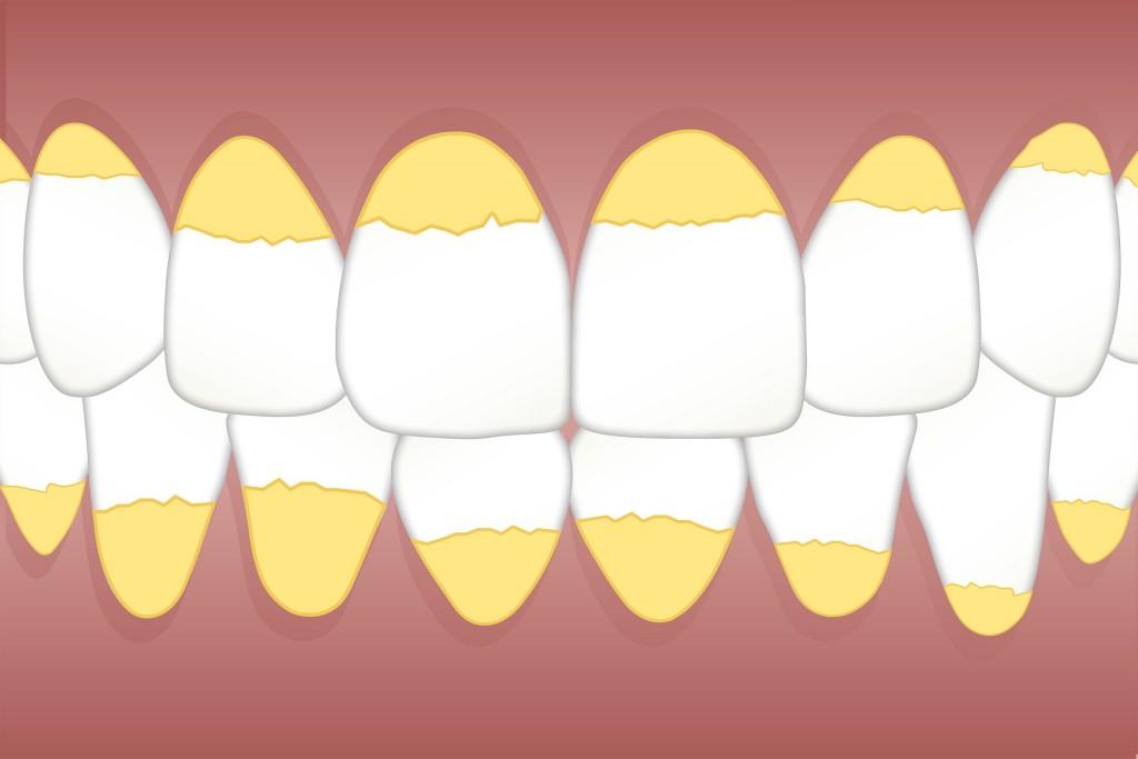dental-3599734_1920
