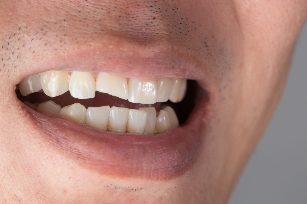 Teeth Injuries or Teeth Breaking in Male. Trauma and Nerve Damage of injured tooth, Permanent Teeth Injury.