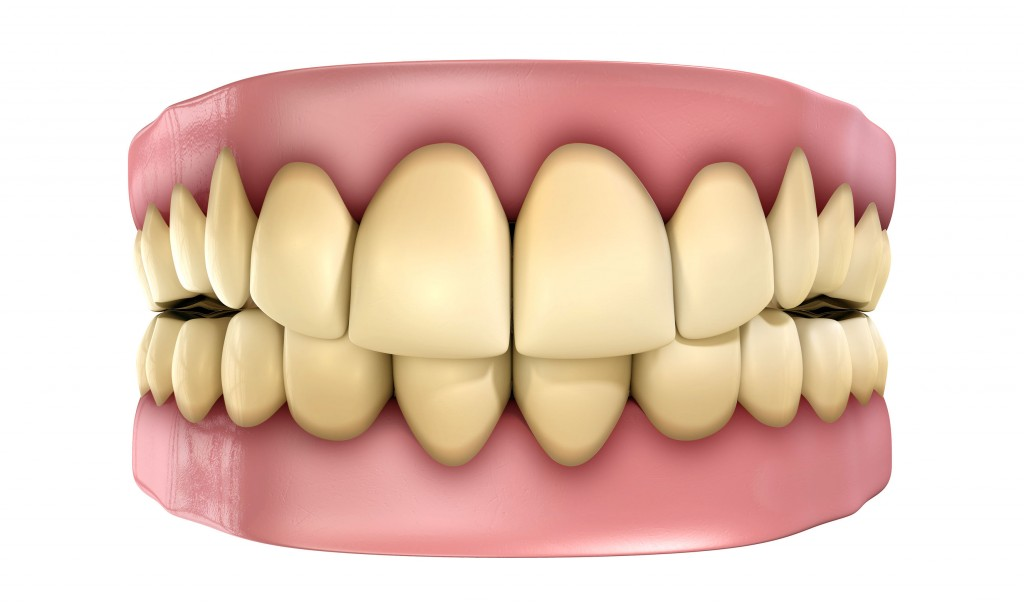 Teeth Set Yellow Isolated
