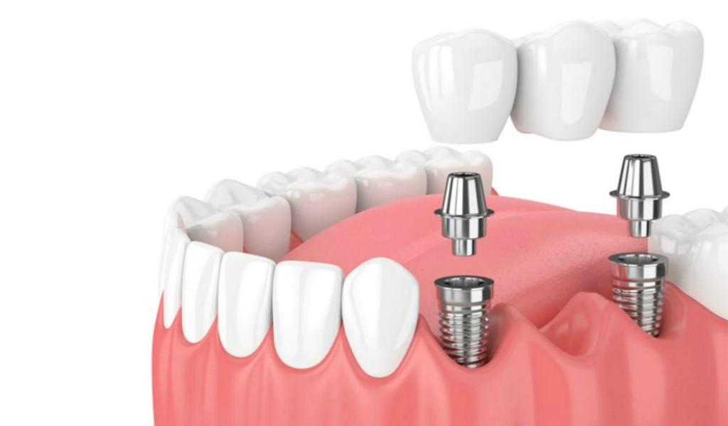 Implantes dentales Dental Icaria