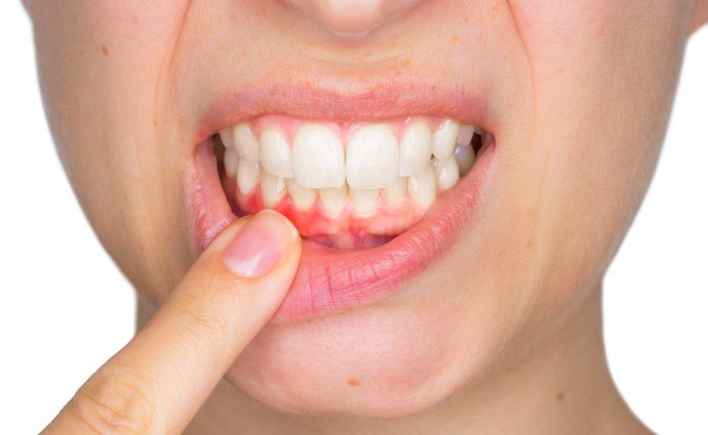 encia-sangrante-por-gingivitis-1024x630