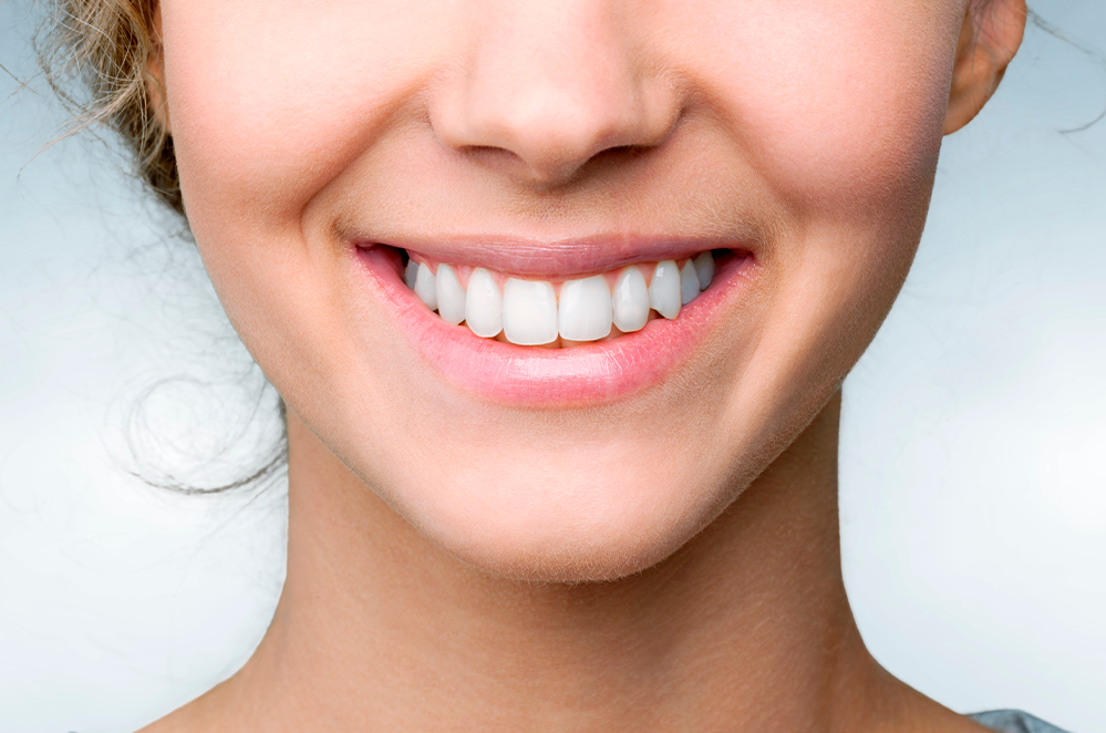 Blanqueamiento Dental Icaria