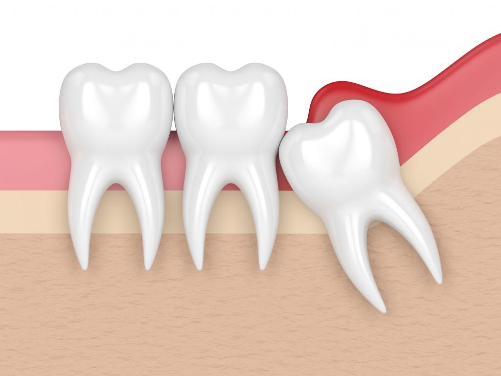 Muelas del juicio Dental Icaria