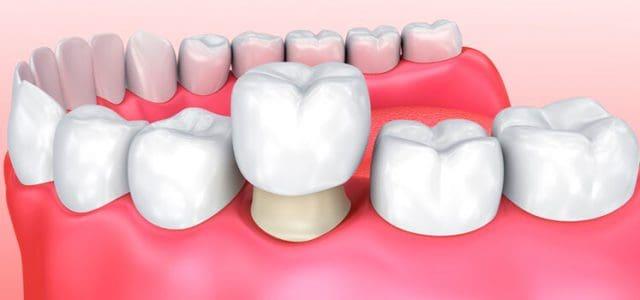 Funda dental Dental Icaria