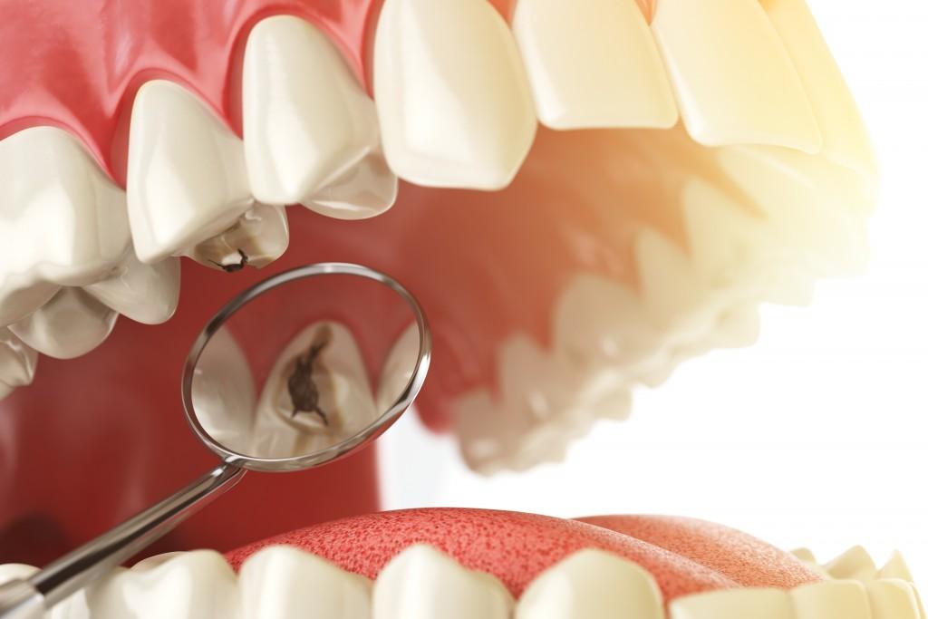 caries dental Clínica Dental Icaria