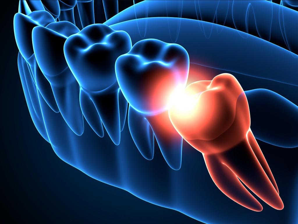 tratamiento muelas del juicio dental icaria