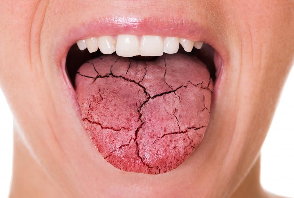Sequedad bucal Dental Icaria